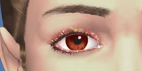 Symptoms of Blepharitis